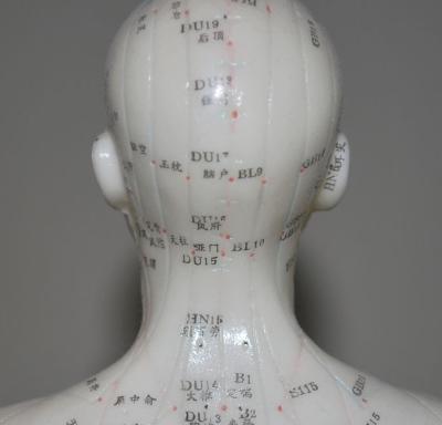 agopuntura sulla testa