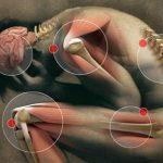La fibromialgia, una malattia sfuggente