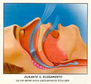 Russamento e difficoltà respiratorie